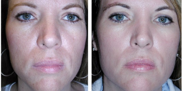 Chemical-Peel-Before-After-620x310
