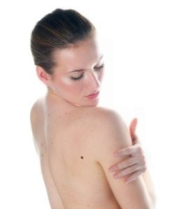 Mole, Wart & Skin Tag Removal