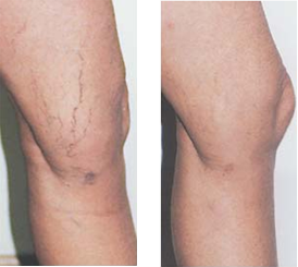 Veins thread Removal facial of