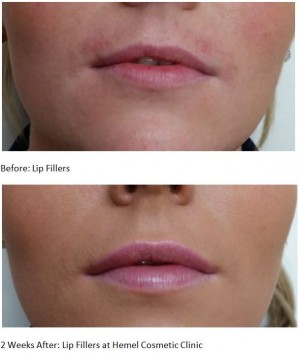 Lip filler Hemel Hempstead, Watford, Berkhamsted, Harpenden