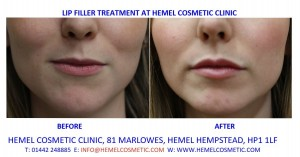 Lip Fillers before & after at Hemel Cosmetic Clinic Hemel Hempstead