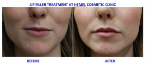 Lip Filler before and after at Hemel Cosmetic Clinic Hemel Hempstead